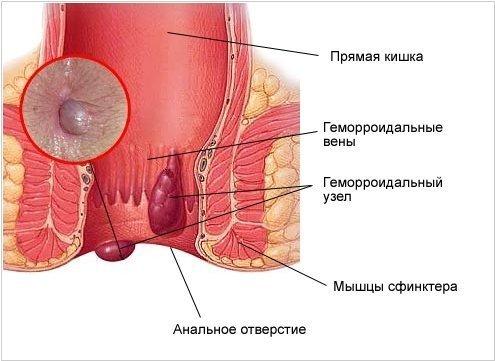 Как выглядят геморроидальные узлы