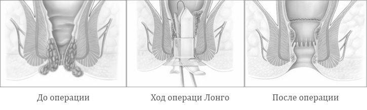 Ход проведения операции