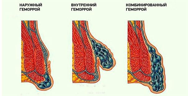 Разновидности деликатной болезни