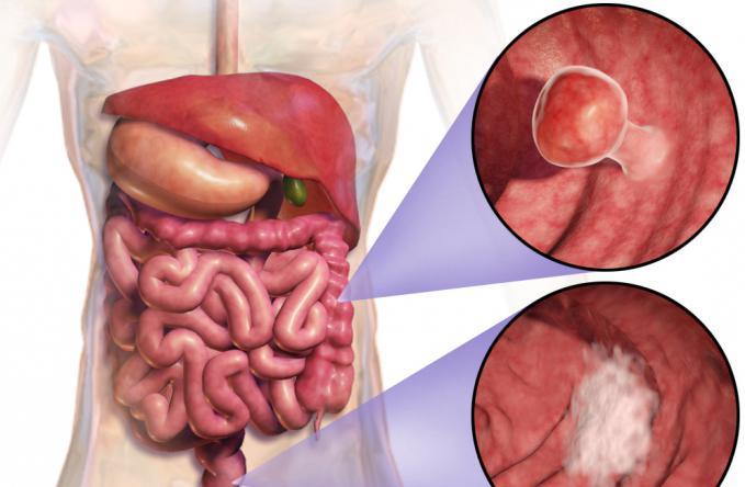 Питание после операции на прямой кишке: особенности диеты и меню