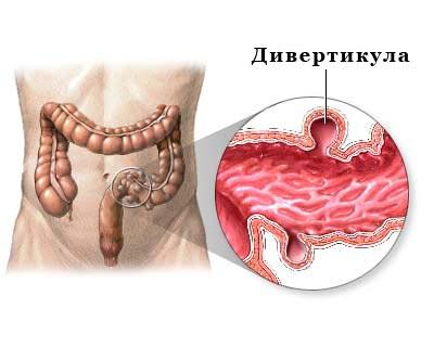 Дивертикулез сигмовидной кишки: симптомы, лечение и диета
