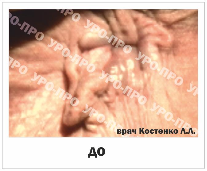 Геморроидальные бахромки фото